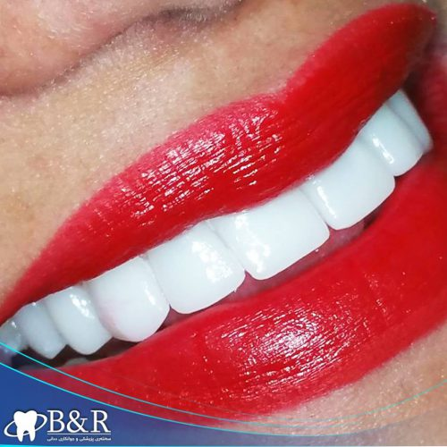 teeth fixed by B&R